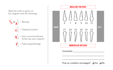 Incisors Diagram
